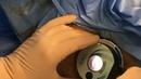 استئصال و ربط بواسير ضخمه باستخدام جهاز ال1