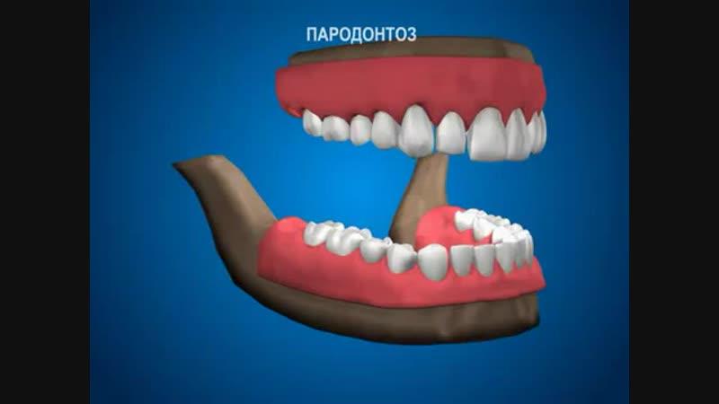 Пародонтология - Пародонтоз - лечение в стоматологической клинике ДокторСтом.mp4