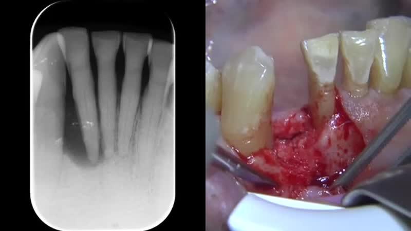 Реконструкция альвеолярного гребня с помощью имплантации. Хирургическая стоматология