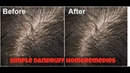 Get Rid Of Dandruff Fast Naturally And Permanently Home Remedies