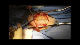 Операция. Декомпрессия малоберцового нерва в фибулярном канале. Нейрохирург Ошурков П.А.