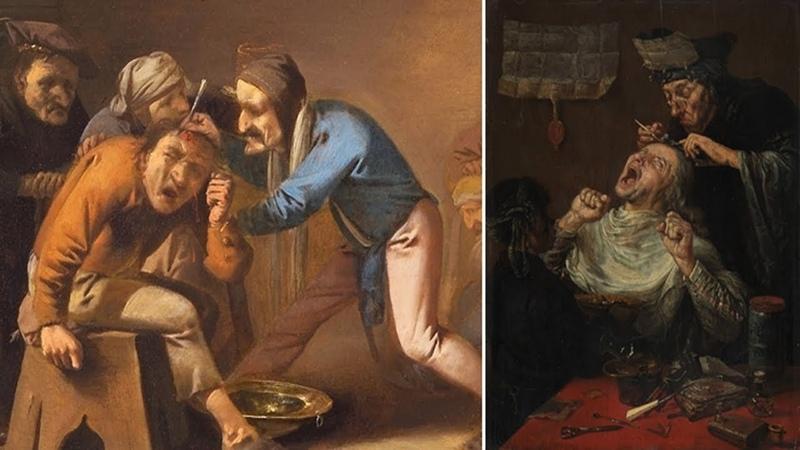 КАМНИ БЕЗУМИЯ: Что делали с душевнобольными в Средние Века