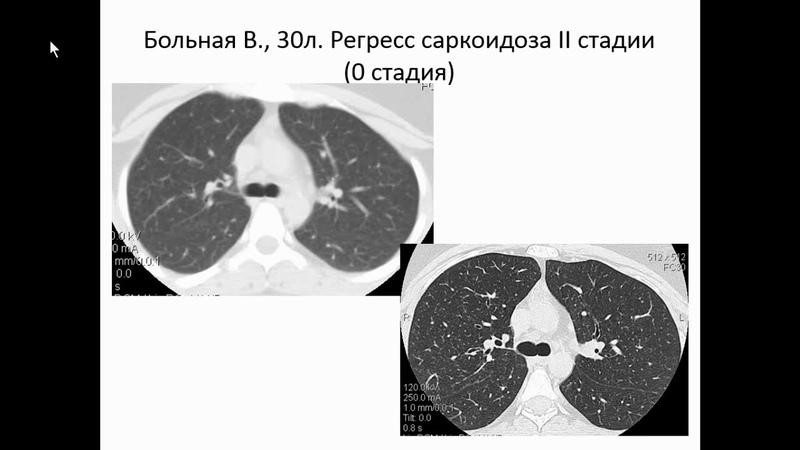 Сперанская А.А. «Лучевая диагностика прогрессирующего саркоидоза»