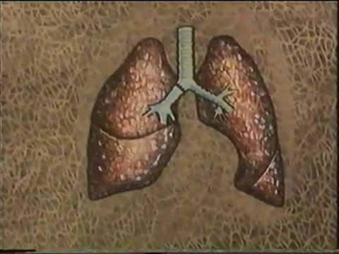Академик Перельман М И оперирует и комментирует Рак легкого © Lung cancer