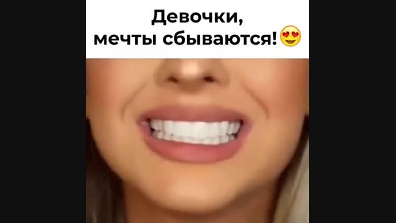Универсальные виниры Perfect Smile