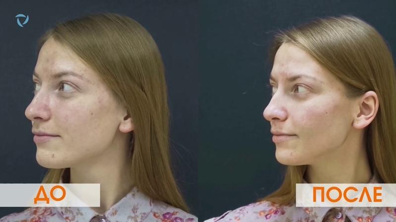 Лазерный карбоновый пилинг Очищение и омоложение кожи Лечение акне