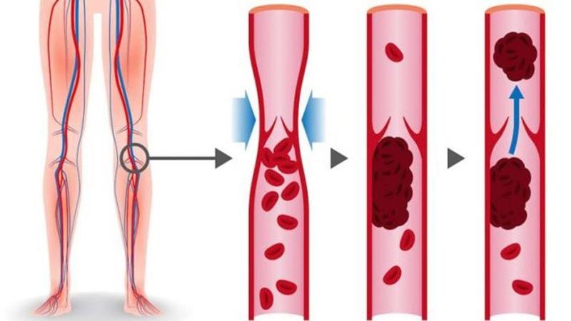 8 продуктов которые разжижают кровь и способны предотвратить тромбоз