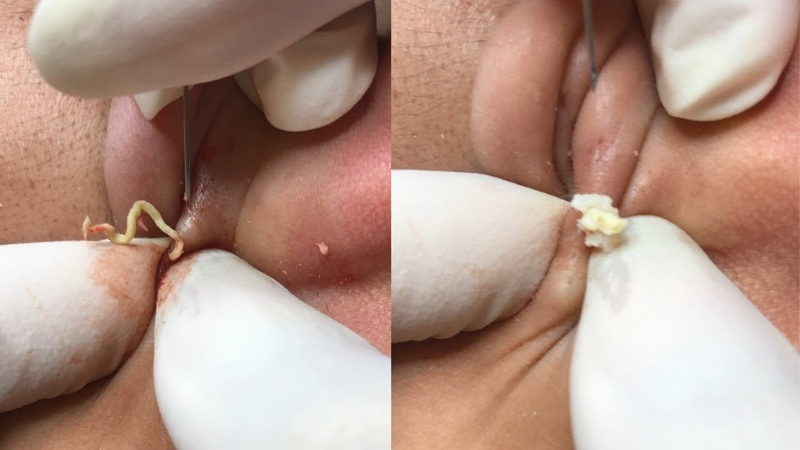 OH MY GOD REMOVAL WITH DR. LOAN POPPER - How to get rid of pimple easy part 39