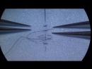 Продвинутый Непрерывный узловой микрососудистый шов