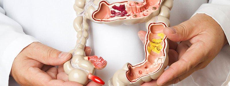 Болезнь Крона: воспалительное заболевание кишечника.