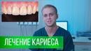 Лечение кариеса Срочная помощь при зубной боли Клиника СтомАвеню Аладьин Сергей Сергеевич