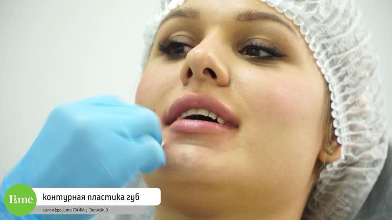 Контурная пластика губ в салоне красоты ЛАЙМ Волжский