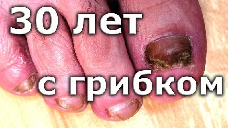 ВЫЛЕЧИЛ грибок ногтей спустя 30 лет Лечение грибка ногтей на ногах