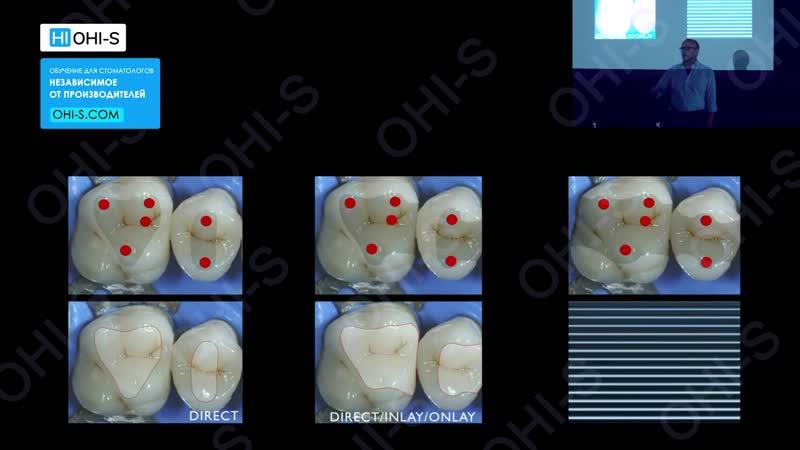 Новейшие тенденции в консервативной стоматологии:прямая и непрямая реставрации