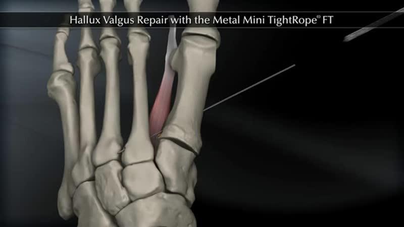 Hallux Valgus Repair with the Metal Mini TightRope FT