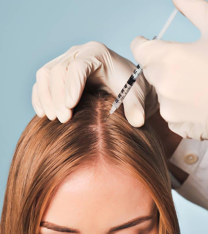 Мезотерапия для роста волос