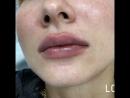 Увеличение губ Тухватуллина Айгуль