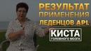 Отзыв о леденцах APL Результаты применения драже APLGO Венера Шакирова отзыв KALGANOVTEAM
