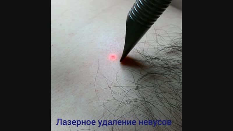 Лазерное удаление невусов