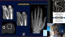 Дифференциальная диагностика злокачественных опухолей костей доброкачественные образования