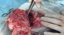 Абдоминальная хирургия: абсцесс поджелудочной железы