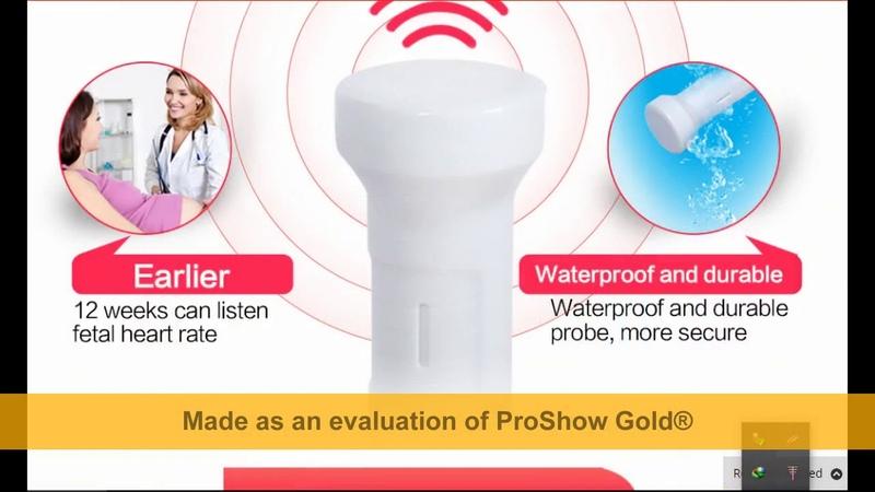 Aliexpress Sonoline Heartbeat Detector B Fetal Doppler Review.