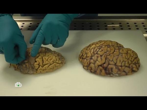 Бактерия, крадущая разум раскрыта тайна болезни Альцгеймера