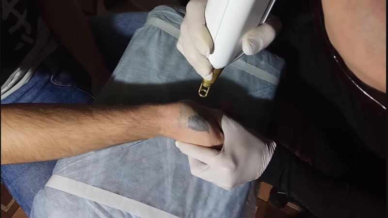 процесс удаления татуировки неодимовым лазером