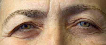 Катаракта возникает, когда часть глаза повреждена, а линзы глаза становятся мутными.