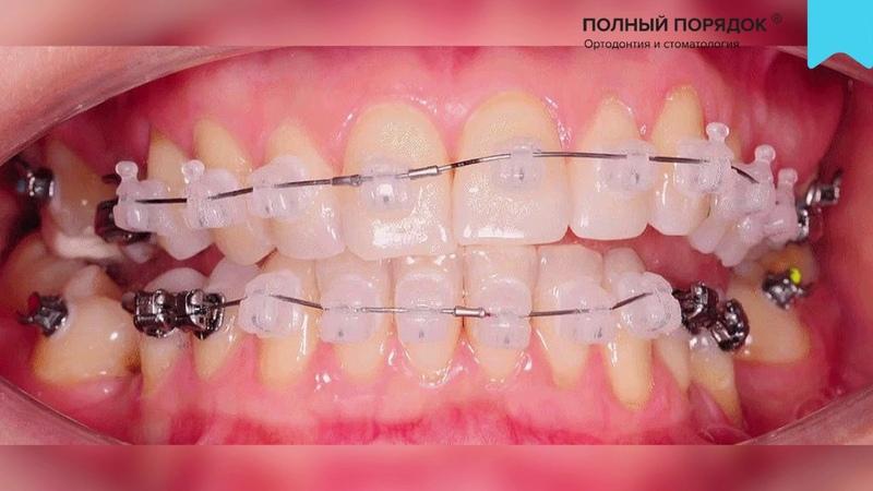 Видео 134. Прогресс за 8 месяцев в ортодонтическом лечении брекет-системой INSIGNIA