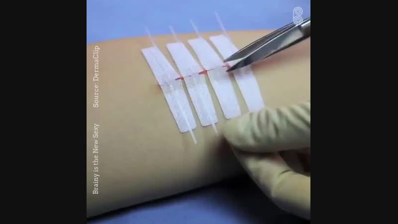 Технология заживления ран без накладывания швов