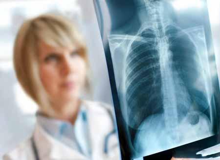Рентген грудной клетки может быть использован для диагностики хронического бронхита у пациентов.