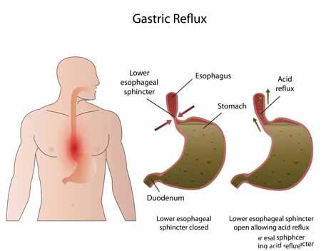 Одним из факторов риска развития хронического бронхита является поступление желудочной кислоты в пищевод