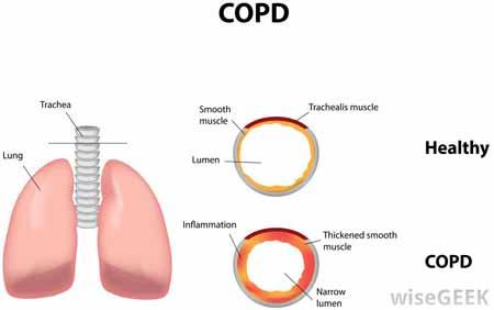 ХОБЛ является распространенным заболеванием легких, которое характеризуется наличием хронического бронхита или эмфиземы.