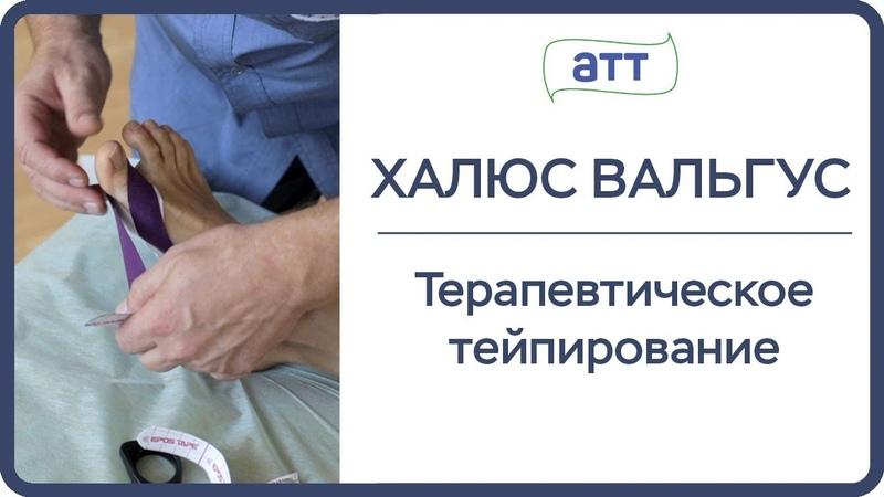 Лечение стопы. Тейпирование при халюс вальгус