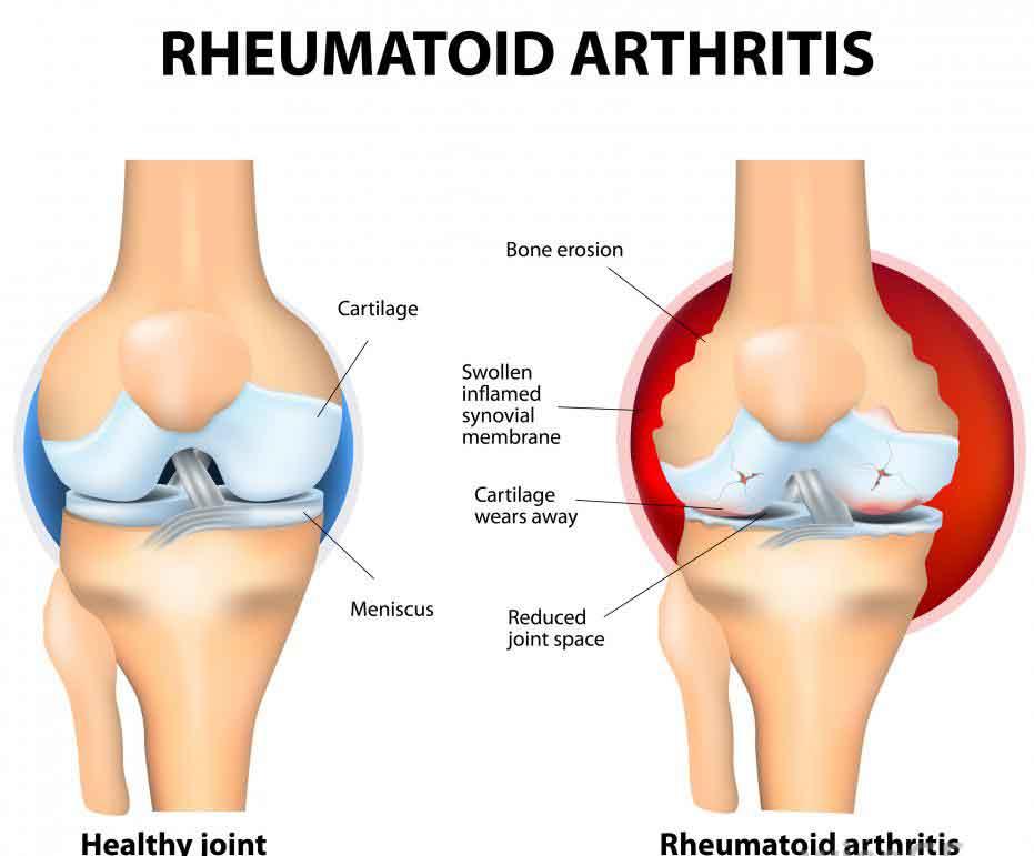 Болезнь Крона может возникнуть как реакция на ревматоидный артрит.