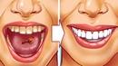 10 Натуральных Способов Устранить Зубной Камень