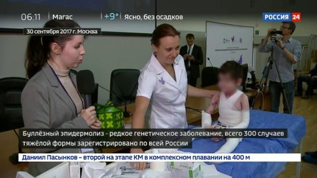 Новости на Россия 24 • Врачи из 25 регионов собрались на конференцию, посвященную детям- бабочкам