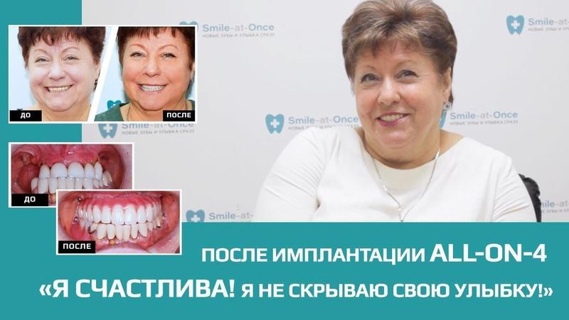 Как получить улыбку, о которой мечтаешь? Имплантация ALL-ON-4 за 1 день в клинике Smile-at-Once!