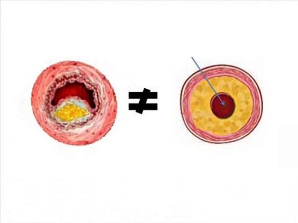 Атеросклероз. Цилиндрическая холестериновая бляшка. Повышение холестерина в крови № 3