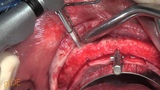 CV-52 All-on-4 Upper Jaw Implant Surgery - Surgical steps (Part 2) PREVIEW