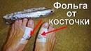 Лечение фольгой косточек на ногах Как остановить рост шишек на пальце Вальгусная деформация стопы