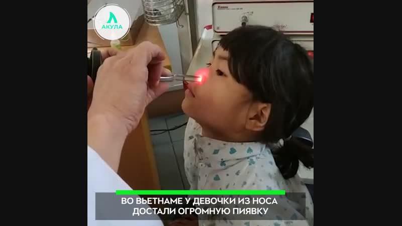 Пиявка в носу | АКУЛА