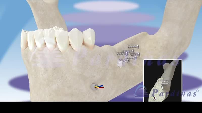 Направленная регенерация костной ткани ©Имплантация