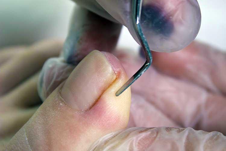 Как лечить вросший ноготь?