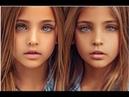Как сейчас живут близняшки которых признали самыми красивыми девочками в мире
