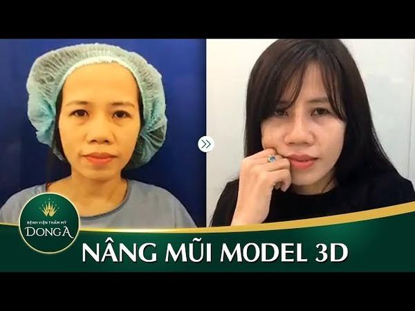 Tái khám Nâng mũi Sline Model 3D sau 10 ngày tại BVTM Đông Á - YouTube