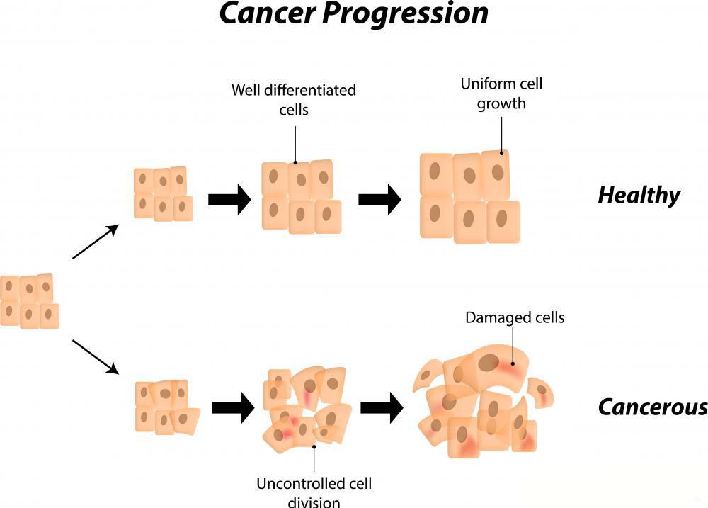Некоторые раковые исследования оценивают, насколько рак продвинулся в организме и метастазировал ли он