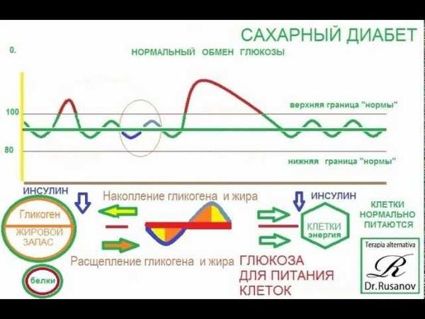 Сахарный диабет. Доктор Сергей Русанов.wmv