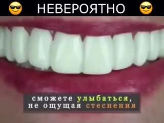 Хотите себе идеальную улыбку? (Смотрите описание под видео)